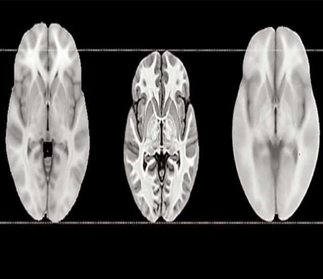 युरोपियन मेंदू, भारतीय मेंदू, चिनी मेंदू - Divya Marathi