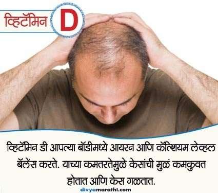 शरीरातील या 5 कमतरतांमुळे गळतात केस, हे पदार्थ खाऊन गरज करा पुर्ण...|जीवन मंत्र,Jeevan Mantra - Divya Marathi