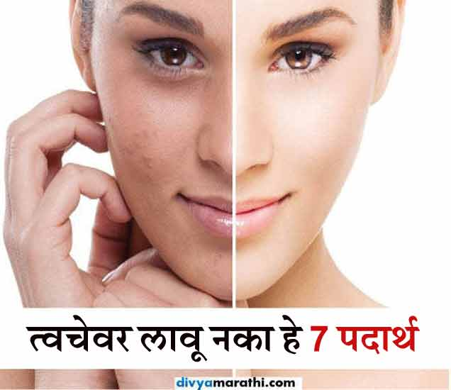 त्वचेवर चुकूनही लावू नका हे 7 पदार्थ, जाणुन घ्या काय होते?|जीवन मंत्र,Jeevan Mantra - Divya Marathi