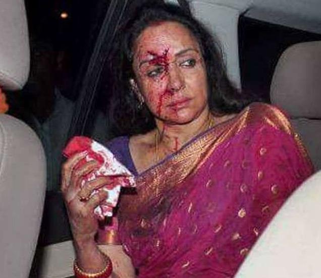 राजस्थानच्या दौसामध्ये लालसोट बायपासवर हा अपघात झाला होता. - Divya Marathi