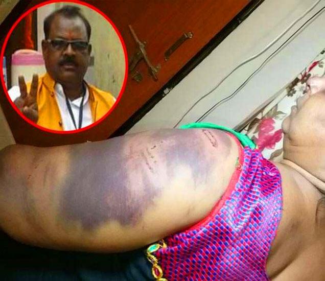 मारहाणीत महिला जखमी झाली. गुन्हा दाखल करण्यासाठी तिला पोलिसांत चकरा माराव्या लागल्या. इन्सेट: आराेपी. - Divya Marathi
