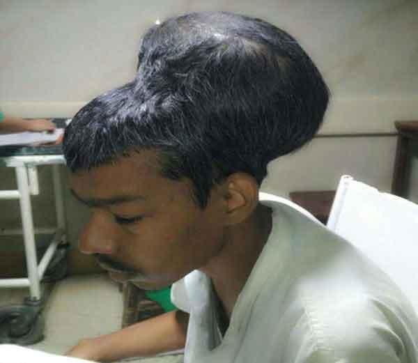 उत्तर प्रदेशात राहणा-या संतलालचे डोकं दिवसेंदिवस मोठं होत चालले होते. - Divya Marathi