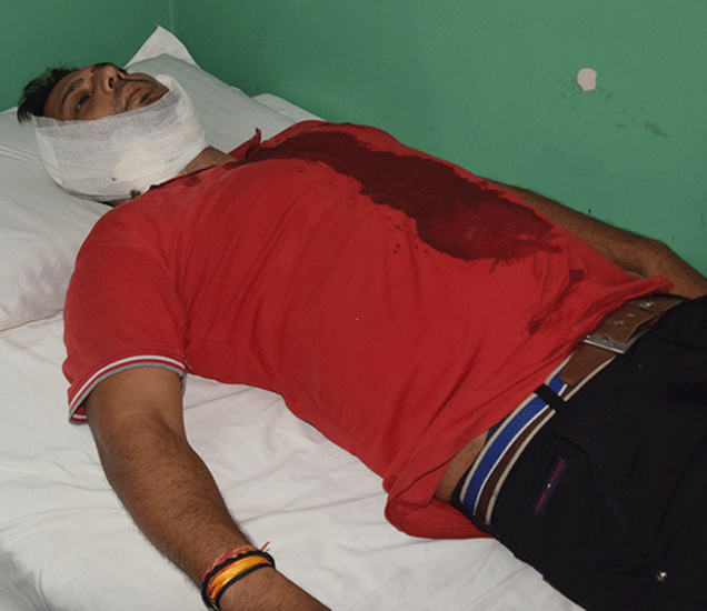 गोळीबारात जखमी झालेला मित्र राजन - Divya Marathi