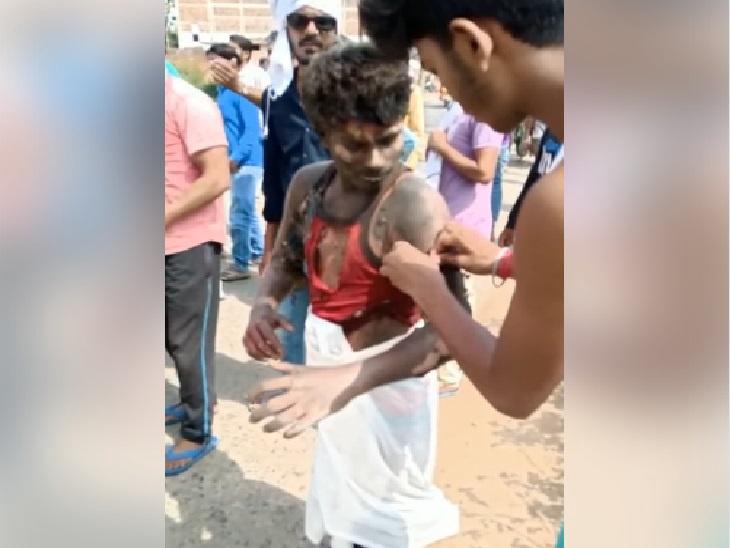 धावत्या गाडीत प्रेयसीने प्रियकराला जाळले, म्हणाली- मी गरोदर आहे, तो मला मारण्याचा प्लॅन करत आहे|देश,National - Divya Marathi
