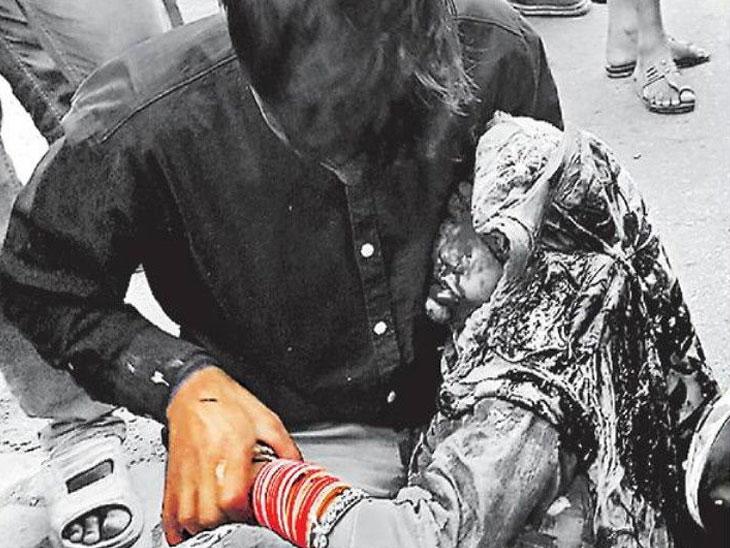 अर्धा तास पत्नीला मांडीवर घेऊन अँब्यूंलंसची मागणी करत होता पती, नंतर झाले असे... देश,National - Divya Marathi
