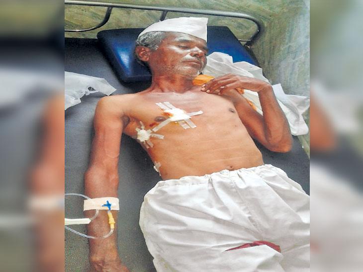 शेळ्या चारणाऱ्या युवकासह वृद्ध इसमावर बिबट्याचा हल्ला; शेतकऱ्यांत भीतीचे वातावरण अकोला,Akola - Divya Marathi