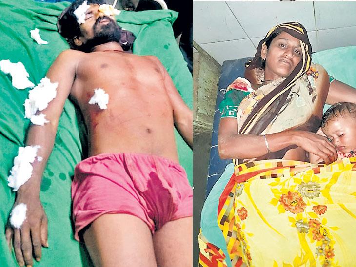 शेतकरी पती-पत्नीवर बिबट्याचा हल्ला; पत्नीला वाचवण्यासाठी पतीची तासभर बिबट्याशी झुंज|औरंगाबाद,Aurangabad - Divya Marathi