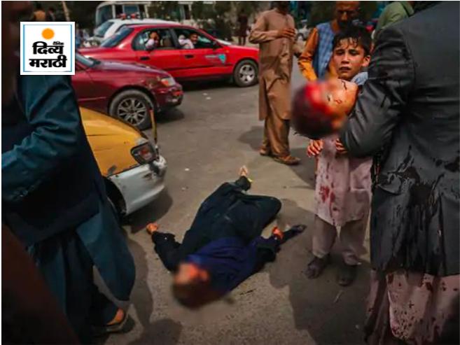 काबुल एअरपोर्टच्या बाहेर वाट पाहत असलेल्या लोकांना तालिबानने दंडे, चाबुक आणि टोकदार हत्यारांननी मारले. हल्ल्यात जखमी झालेल्या मुलाला नेत असताना एक व्यक्ती.