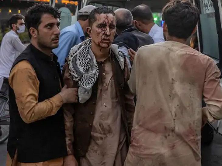 लोक हल्ल्यात जखमी झालेल्या एका व्यक्तीला रुग्णालयात घेऊन जाताहेत. काबूल हल्ल्यात 200 हून अधिक लोक जखमी झाले आहेत.