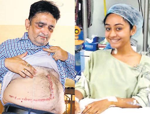 લિવર ડોનેટ કરી દીકરીએ કહ્યું, 'પપ્પા, બર્થ ડે ગીફ્ટ ગમી.?'|સુરત,Surat - Divya Bhaskar
