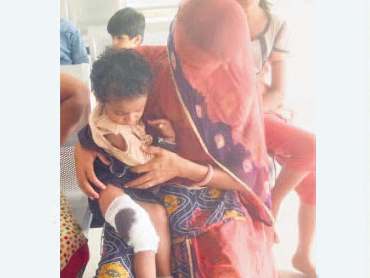 ડીસામાં બે વર્ષની બાળકી સહિત 3ને હડકાયું કૂતરું કરડ્યું પાલનપુર,Palanpur - Divya Bhaskar