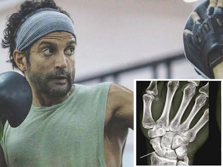 'તૂફાન'ના શૂટિંગ દરમિયાન ફરહાનના હાથમાં હેર-લાઈન ફ્રેક્ચર થયું, સો.મીડિયામાં એક્સ રે શૅર કર્યો  - Divya Bhaskar