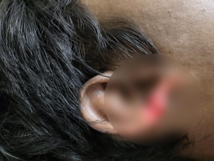 સાયલા સરકારી દવાખાનામાં લાશનો કાન ઉંદરો કાતરી ગયા સાયલા,Sayla - Divya Bhaskar