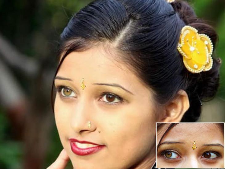એક આંખનો કલર હેઝલ તો બીજાનો રંગ બ્લેકીશ બ્રાઉન છે. જે મેડીકલ સાયન્સમાં દુર્લભ સ્થિતિ છે. જેને હેટેરોક્રોમીઆ આઈરીડમ કહેવામાં આવે છે - Divya Bhaskar