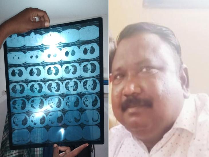 મૃતક શિક્ષક અને હાડકું ફસાયું હોવાનો એક્સરે - Divya Bhaskar