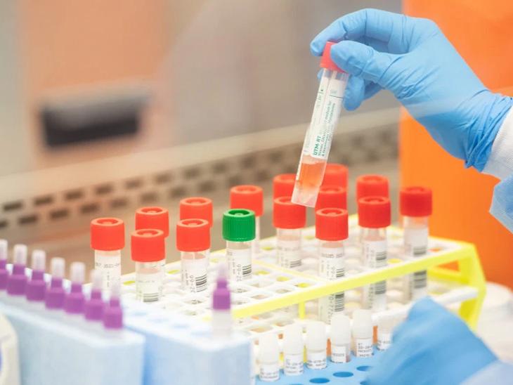વડોદરાની SSG હોસ્પિટલમાં મશીન નથી, કોરોનાને પગલે 80 લાખના ટેસ્ટ ખાનગી લેબમાં કરાવવા પડ્યા વડોદરા,Vadodara - Divya Bhaskar