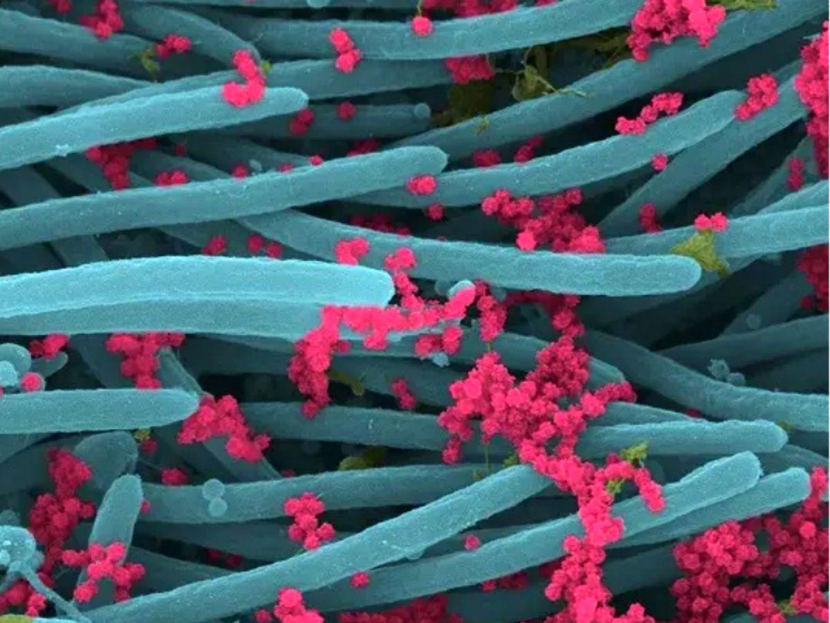 કોરોનાનું સંક્રમણ થયું હોય ત્યારે કોષો કેવા દેખાય છે, વૈજ્ઞાનિકોએ તસવીર જાહેર કરી, લાલ ગુચ્છામાં જોવા મળ્યાં સેંકડો કોરોનાવાઈરસ કોરોના - વેક્સિનેશન,Coronavirus - Divya Bhaskar