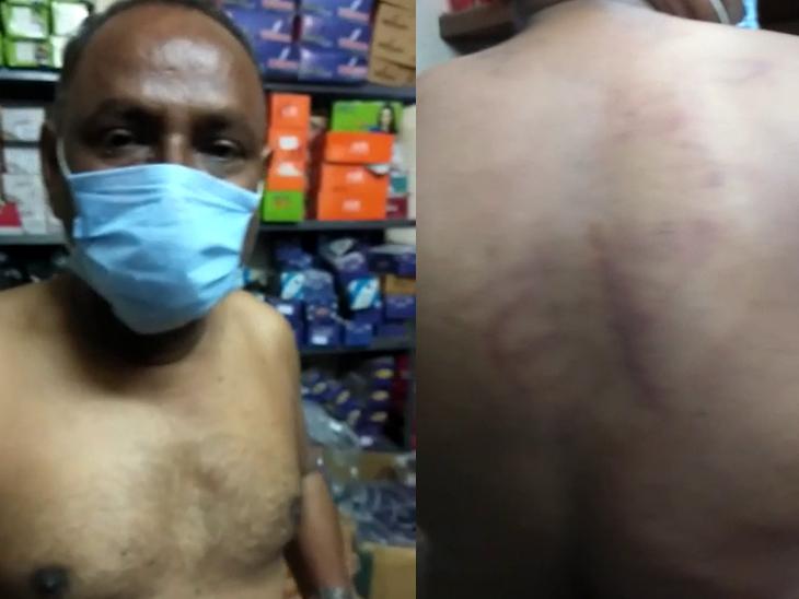 પોલીસે મારેલા મારના ચકામા બતાવવા ચંપલના વેપારીએ વિડીયો વાઈરલ કર્યો - Divya Bhaskar