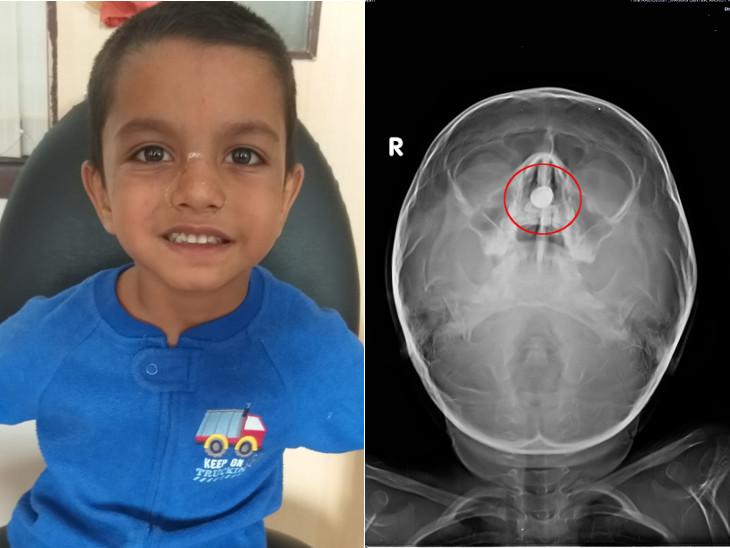 રાજકોટમાં 6 વર્ષના બાળકના નાકમાં 5 મહિનાથી બેટરી સેલ ફસાયો હતો, સફળ ઓપરેશન કરી બહાર કઢાયો - Divya Bhaskar