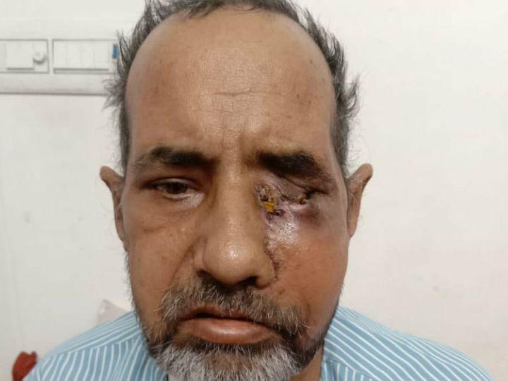 ડાયાબિટીસના દર્દીને કોરોનાની સારવાર દરમિયાન સ્ટીરોઇડ આપવામાં આવી, તેનાથી બ્લેક ફંગસ એટેક થયો અને આંખ કાઢવી પડી ઈન્ડિયા,National - Divya Bhaskar