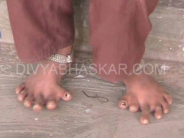 હાથ અને પગમાં 6-6 આંગળીઓ