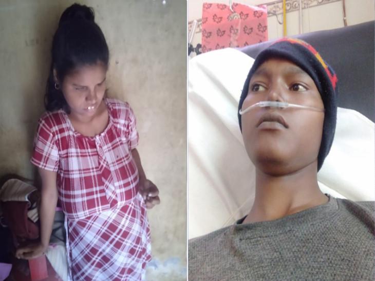 જીવન-મરણ વચ્ચે ઝોલાં ખાતા 19 વર્ષીય ભાઈ માટે પ્રજ્ઞાચક્ષુ બહેન તારણહાર બની, પોતાની કિડની આપી જીવ બચાવશે|સુરત,Surat - Divya Bhaskar