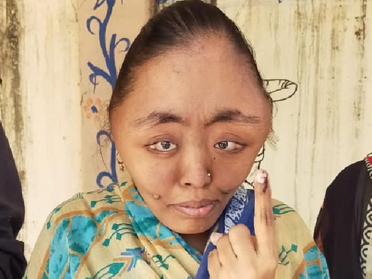'પા' ફિલ્મના બિગ બી જેવી બીમારીથી પીડાતી વડોદરાની યુવતીનું મતદાન, સાંસદે 6 વર્ષ પહેલા દત્તક લીધા બાદ દીકરીને તરછોડી દીધી|વડોદરા,Vadodara - Divya Bhaskar