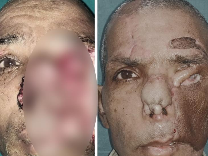 જાનવરના પંજાના હુમલાથી ગરીબ ખેડૂતે 40 ટકા ચહેરો ગુમાવ્યો, સિવિલ હોસ્પિટલે ચહેરાનું પુન:સર્જન કર્યું, 12 લાખની સર્જરી મફત કરી અમદાવાદ,Ahmedabad - Divya Bhaskar
