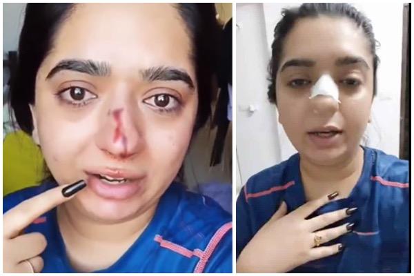 ઝોમેટો ડિલિવરી બોય પર પંચ મારવાનો આરોપ લગાડનારી યુવતીએ બેંગલુરુ છોડ્યું, પોલીસે હાલમાં જ તેના વિરૂદ્ધ FIR નોંધી હતી|ઈન્ડિયા,National - Divya Bhaskar
