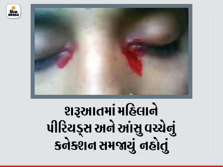 25 વર્ષીય મહિલાને પીરિયડ્સ દરમિયાન આંખમાંથીલોહીનાં આંસુ આવે છે, જાણો આ રેર કન્ડિશન શું છે? લાઇફસ્ટાઇલ,Lifestyle - Divya Bhaskar