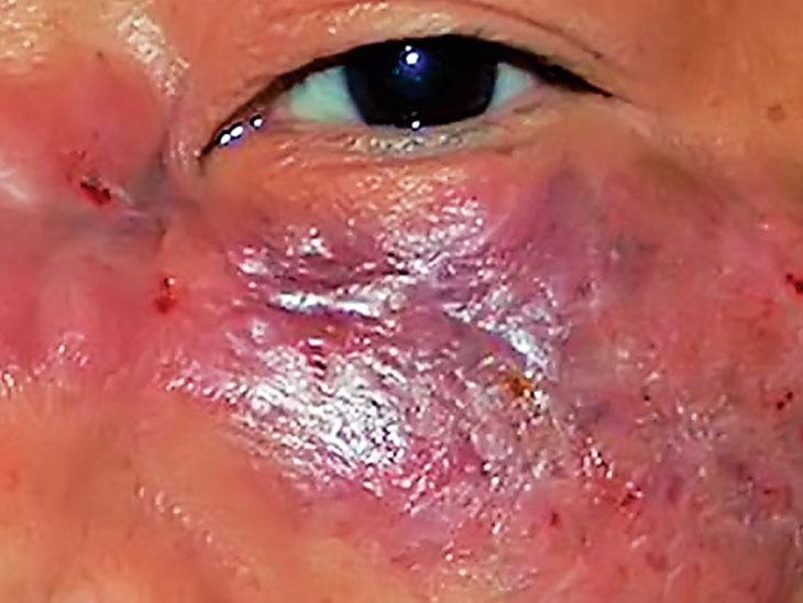 કોરોનાના દર્દીઓમાં ઇન્ફેક્શન ફેલાતા આંખોમાં અંધાપો આવવાની શક્યતા, સુરત શહેર-ગ્રામ્યમાં 50થી વધુને અસર|ઓલપાડ,Olpad - Divya Bhaskar
