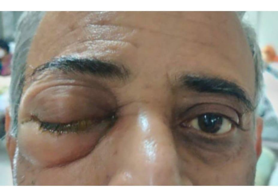 હળવદ પંથકમાં કોરોનાના સંક્રમણ વચ્ચે મ્યુકોર માઇકોસીસ રોગચાળાએ માથું ઉચક્યું|સુરેન્દ્રનગર,Surendranagar - Divya Bhaskar