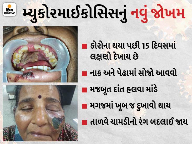 મ્યુકોરમાઈકોસિસમાં આંખ, નાક અને દાંતને લગતાં લક્ષણો જોવા મળ્યા, હવે આ રોગ મગજમાં પણ પ્રસરવા માંડ્યો|અમદાવાદ,Ahmedabad - Divya Bhaskar