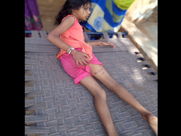 ઝીંઝવામાં બે કપિરાજે બાળકીને પગે બચકાં ભરી ઘાયલ કરી હતી - Divya Bhaskar