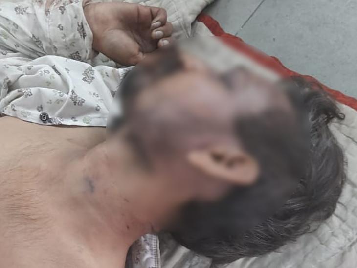 સુરતમાં હીરાના કારખાનામાંથી યુવકનો મૃતદેહ મળ્યો, શરીર પર ઈજાના નિશાન, હત્યાનો ગુનો નોંધાયો|સુરત,Surat - Divya Bhaskar