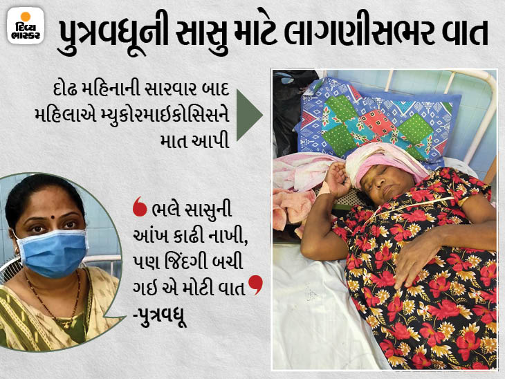 વડોદરાની સયાજી હોસ્પિટલમાં મ્યુકોરમાઇકોસિસના મહિલા દર્દીની આંખ કાઢવી પડી, પુત્રવધૂએ કહ્યું: 'હું એમની બીજી આંખ બનીને સેવા કરીશ' વડોદરા,Vadodara - Divya Bhaskar