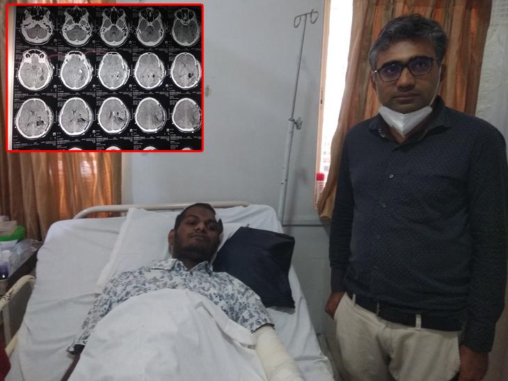 સુરતમાં 27 વર્ષના યુવકના મગજની વચ્ચે થયેલી ત્રણ સેમીની ટ્યુમરની સફળ સર્જરી કરાઈ|સુરત,Surat - Divya Bhaskar