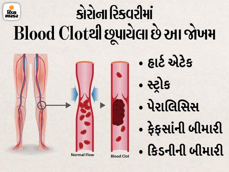 કોરોના સંક્રમણ બાદ લોહી પાતળું થવાની દવા સાબિત થઈ જીવનરક્ષક, સંક્રમણમાંથી રિકવર થયા બાદ બ્લડ ક્લોટથી સુરક્ષા મળે છે ઈન્ડિયા,National - Divya Bhaskar