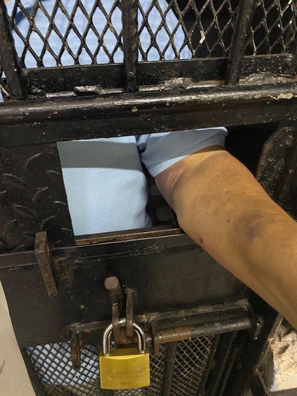 જેલના સળિયા પાછળથી પોતાનો હાથ બતાવતો મેહુલ ચોક્સી.