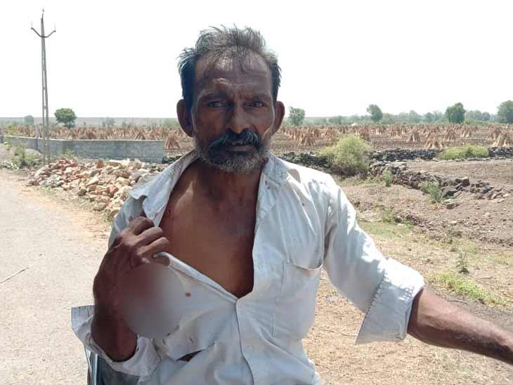 ગોંડલના લીલીખા ગામે પાણત કરતા ખેડૂત પર દીપડાએ હુમલો કર્યો, વન વિભાગે પાંજરુ મૂકવા કાર્યવાહી શરૂ કરી|રાજકોટ,Rajkot - Divya Bhaskar