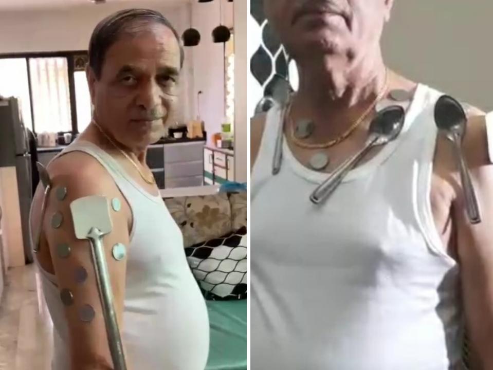 વેક્સિન લીધા પછી લોખંડ, સ્ટીલની વસ્તુઓ શરીર પર ચોંટી જાય, સરકારે તપાસનો આદેશ આપ્યો|ઈન્ડિયા,National - Divya Bhaskar