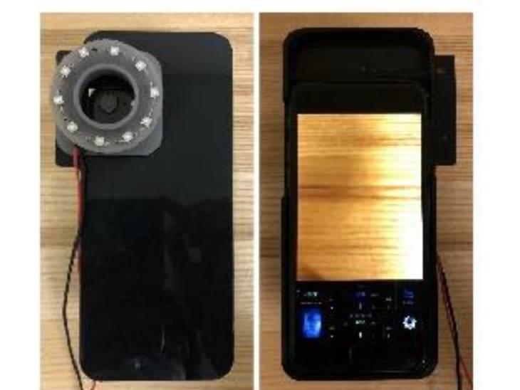 3D રિંગવાળા મોબાઈલ કેમેરામાં 10 LED લાઈટ અટેચ કરી બેક્ટેરિયાની તપાસ થાય છે - Divya Bhaskar