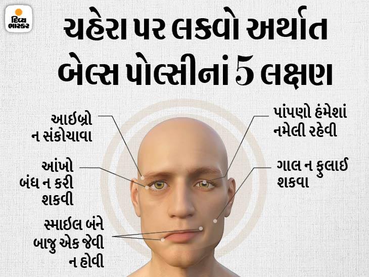 બેલ્સ પોલ્સી માંશપેશીઓમાં નબળાઈ અને પેરાલિસિસ (લકવા) સંબંધિત બીમારી છે. તેની અસર દર્દીના ચહેરા પર દેખાય છે. દર્દીના અડધા ચહેરાની સ્માઈલ પર અસર થાય છે અને એક આંખ બંધ નથી થઈ શકતી. ચહેરાની માંસપેશીઓ નબળી પડી જાય છે અને અડધા ચહેરાની ચામડી લટકેલી નજર પડે છે. - Divya Bhaskar