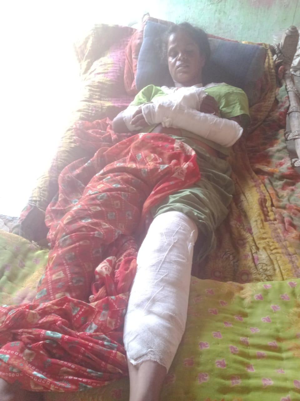 ઘરે દારૂ પીવાની ના પાડી તો દારૂડિયાએ કુટુંબી મહિલાના હાથ પગ ભાંગી નાખ્યા|સુરેન્દ્રનગર,Surendranagar - Divya Bhaskar