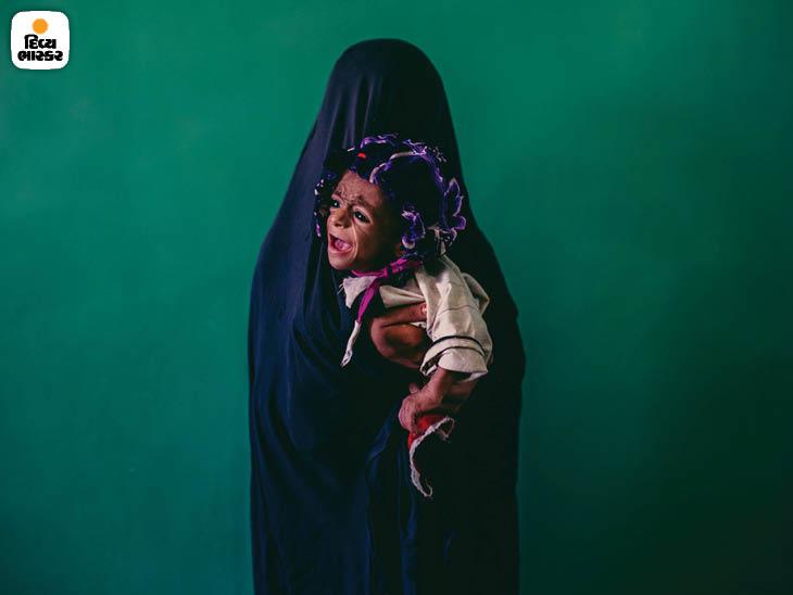 સપ્ટેમ્બર 2013: અફઘાનિસ્તાનના હેલમંડ ક્ષેત્રના લશગર ગારની એક હોસ્પિટલમાં 15 વર્ષની મા ઇસ્લામ બીબી સાથે આઠ માસનું કુપોષિત સમીઉલ્લાહ. ફોટો: ડેનિયલ બેરેહુલાક