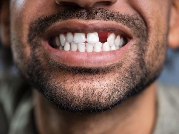 જો સમય પહેલાં તમારાં દાંત તૂટવા લાગે તો યાદશક્તિ ઘટવાનું જોખમ 1.28ગણું વધારે, આ રીતે ઓરલ હેલ્થનું ધ્યાન રાખો|લાઇફસ્ટાઇલ,Lifestyle - Divya Bhaskar