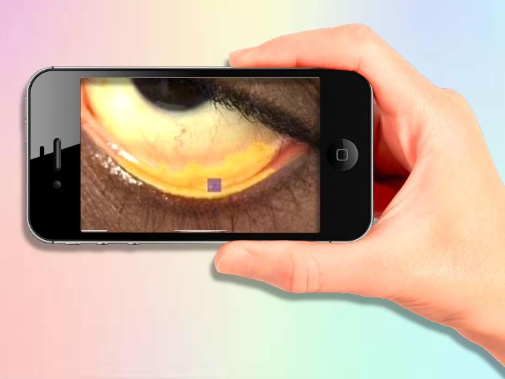 સ્માર્ટફોનથી આંખની નીચેના ભાગનો ફોટો લઈ એનિમિયાની તપાસ કરી શકાશે, AIથી સજ્જ કેમેરા ફોટો જોઈ જણાવશે વ્યક્તિ બીમાર છે કે નહિ હેલ્થ,Health - Divya Bhaskar