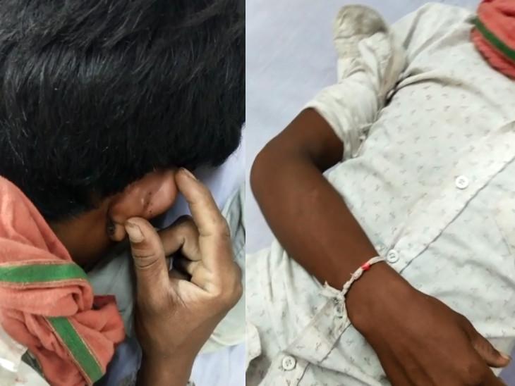 સુરતમાં યુવાનને સાપે ડંખ મારતા પરિવાર ભુવા પાસે લઈ ગયા, દોરા ધાગા બાંધી સારું થઈ જશે કહી ઘરે મોકલ્યો, તબિયત લથડતા હોસ્પિટલ ખસેડાયો|સુરત,Surat - Divya Bhaskar