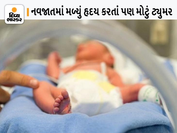 ગર્ભમાં બાળક સાથે ટ્યુમરનો પણ ઉછેર, બાળક તેનાં હૃદય કરતાં પણ મોટાં 3 ઈંચનાં ટ્યુમર સાથે જન્મ્યું, ડૉક્ટર્સે સર્જરીથી ટ્યુમર દૂર કરી કરી નવજીવન આપ્યું|લાઇફસ્ટાઇલ,Lifestyle - Divya Bhaskar