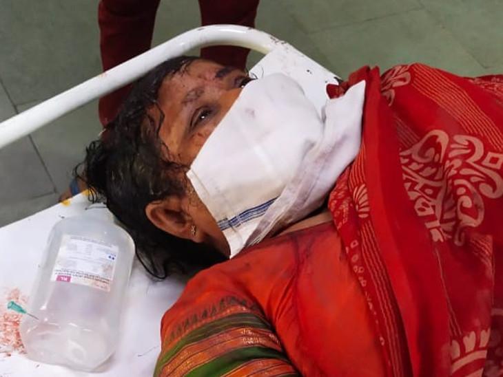 મહિલા પર હુમલો થતાં સારવાર માટે સિવિલ હોસ્પિટલમાં ખસેડવામાં આવ્યાં હતાં. - Divya Bhaskar